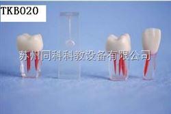 TKB020临床牙根管教学模型