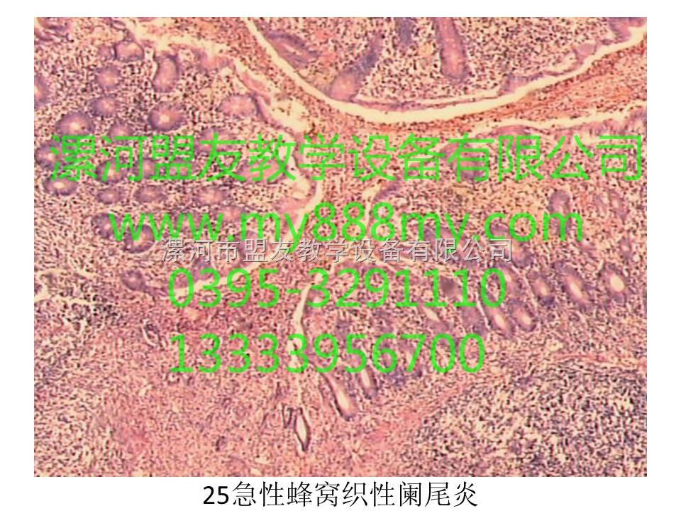 病理切片-图为急性蜂窝织性阑尾炎