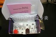 鸭病毒性肠炎病毒(DEV)ELISA试剂盒供应商