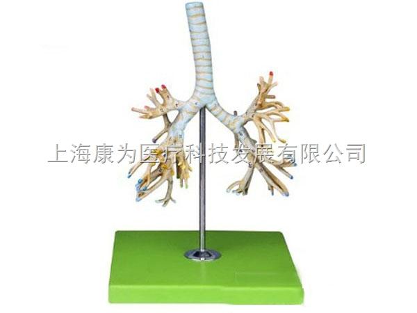 """支气管树模型 呼吸系统系列 支气管树模型 呼吸系统系列功能特点:  该模型显示气管、左右主支气管、肺叶支气管和肺段支气管等结构。  尺寸:自然大  材质:PVC材料 """"康大夫""""产品售后服务: 我公司生产出厂的科教设备产品一律实行质量三包,终身维护的售后服务制度。 1、为每一个客户建立用户档案,每月定期电话回访或人员不定期到访。 2、设备类产品免费派人上门安装调试,,我公司的技术工程师为您提供基础、全面、专业的设备安装支持,实现标准化的现场安装。 3、提供详尽而完善的使用说明书和"""