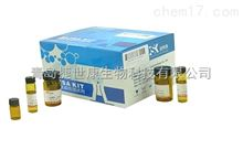 48T/96T人超敏生长激素(U S-GH)elisa试剂盒_山东青岛