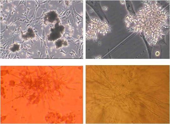 细胞培养时为了防真菌污染需要加什么样的抗生素 前段时间,实验室培养细胞的时候出现过真菌污染,所以想问一下是否可以在培养基中加入抗真菌的抗生素从而达到防止真菌污染的目的