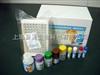 人凋亡相关因子(FAS/CD95)ELISA试剂盒