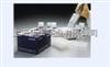 人巨噬细胞来源的趋化因子(MDC/CCL22)ELISA试剂盒多少钱