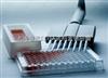 HABP试剂盒,小鼠透明质酸结合蛋白ELISA试剂盒