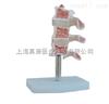ZK-XC134骨质疏松模型(人体骨骼模型)